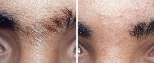 eyebrow_hair_reduction_sult_rn